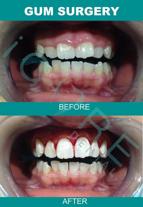braces-price-1