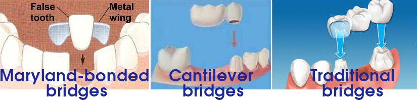 tooth-bridge-types