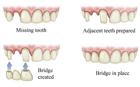 tooth-bridge