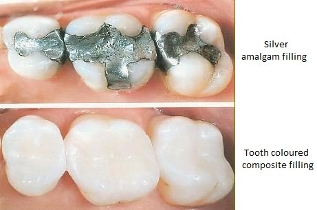 types of tooth filling
