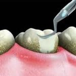 tooth scaling polishing