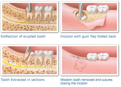 wisdom-tooth-extraction