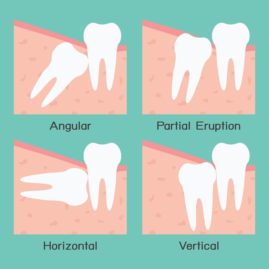 wisdom-tooth-impaction-types