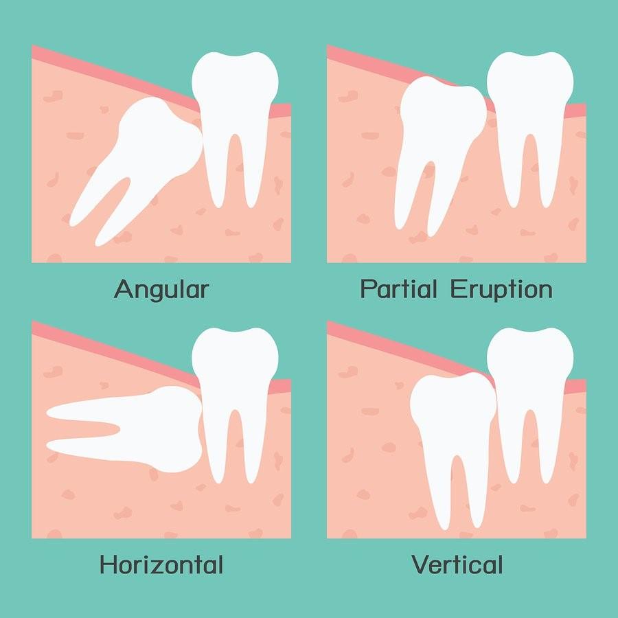 Wisdom Tooth Extraction Dental Clinic Near Me Invisalign Malaysia Braces Price Malaysia
