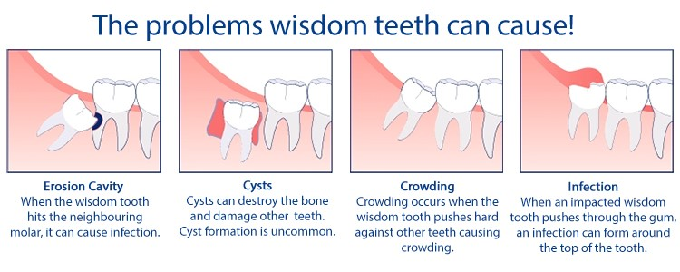 wisdom-tooth-problems