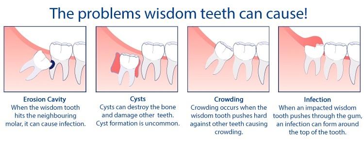 wisdom-tooth-problems.jpg