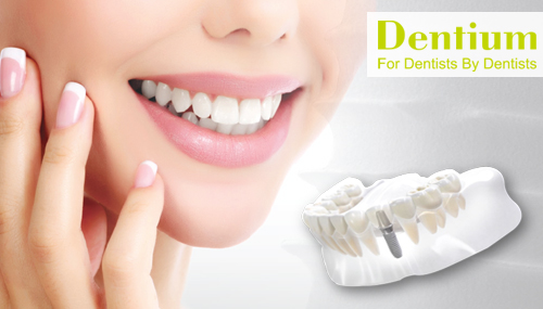 dental-implant-cost-malaysia