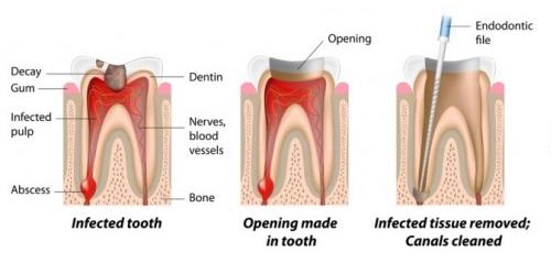 teeth-whitening-malaysia-5