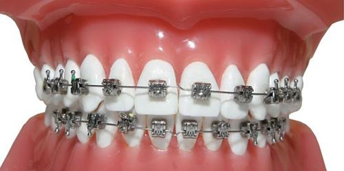 braces-price-8