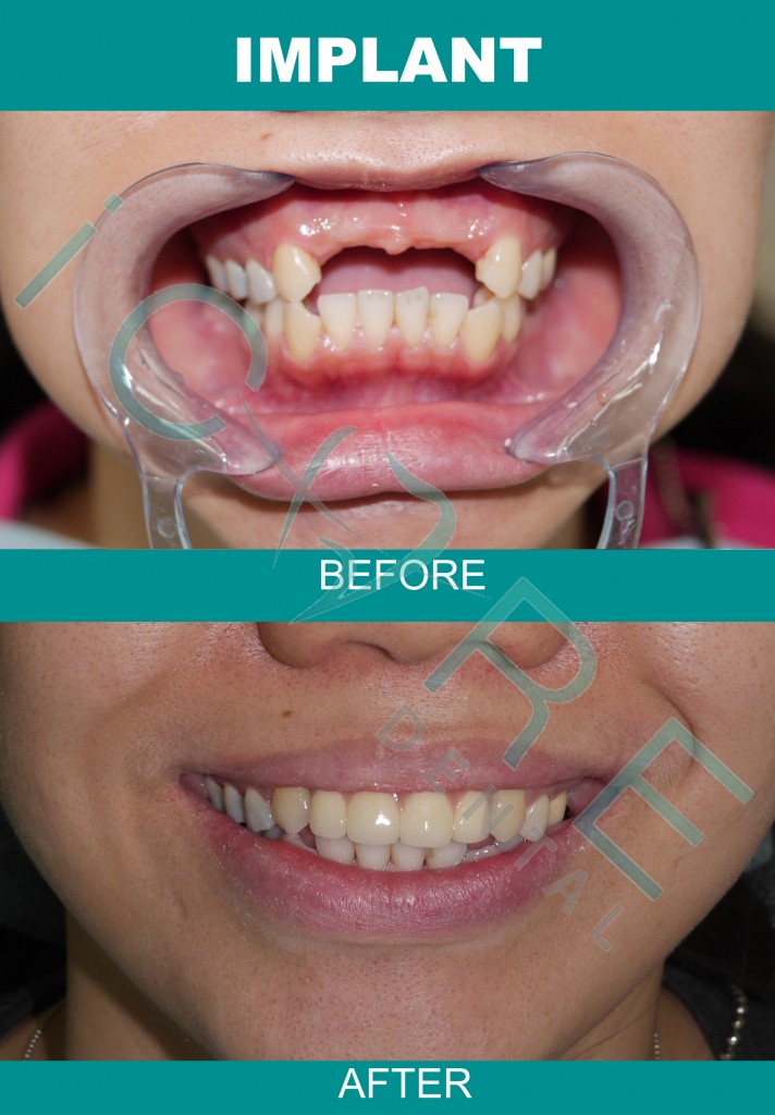 dental-implant-cost-malaysia-1