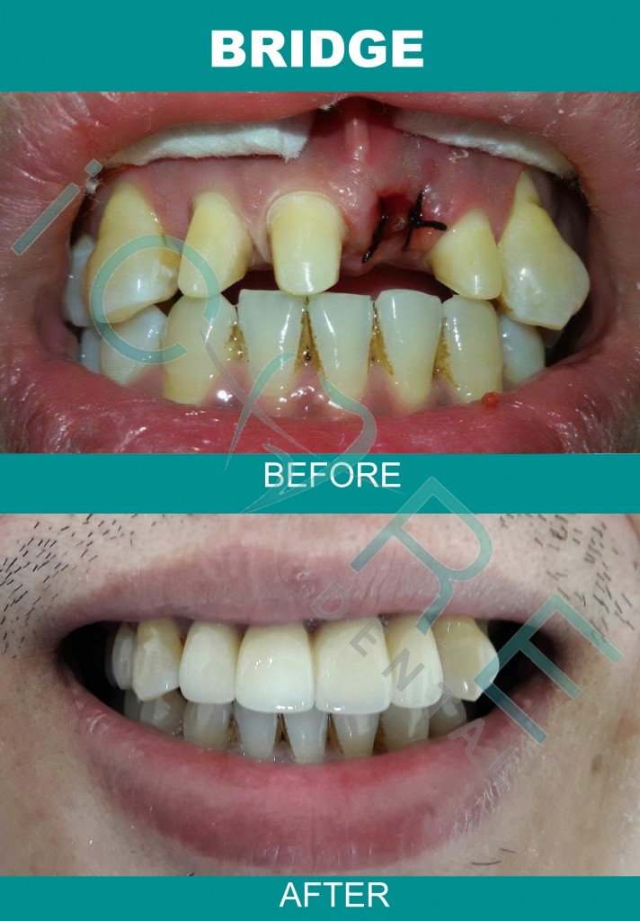 tooth-implant-malaysia-1