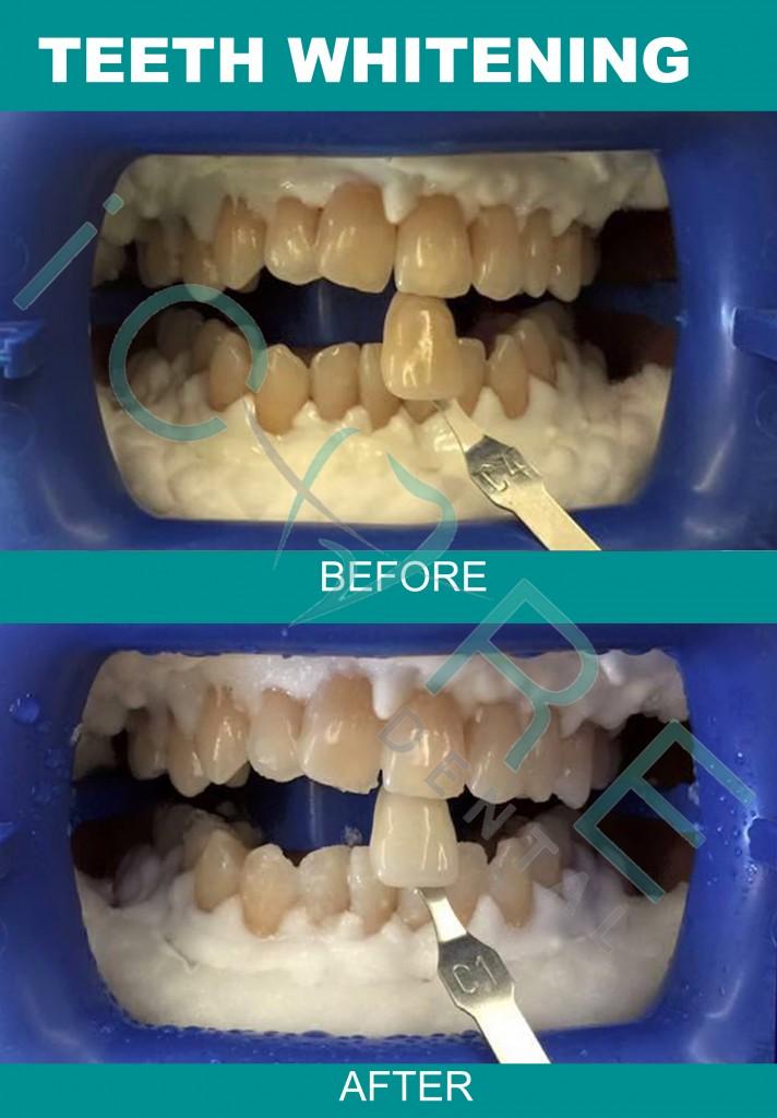 teeth-whitening-malaysia-3