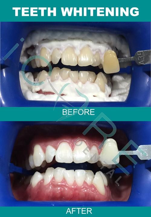 braces-price-4