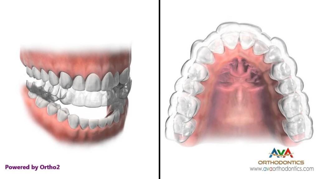 braces-price-9