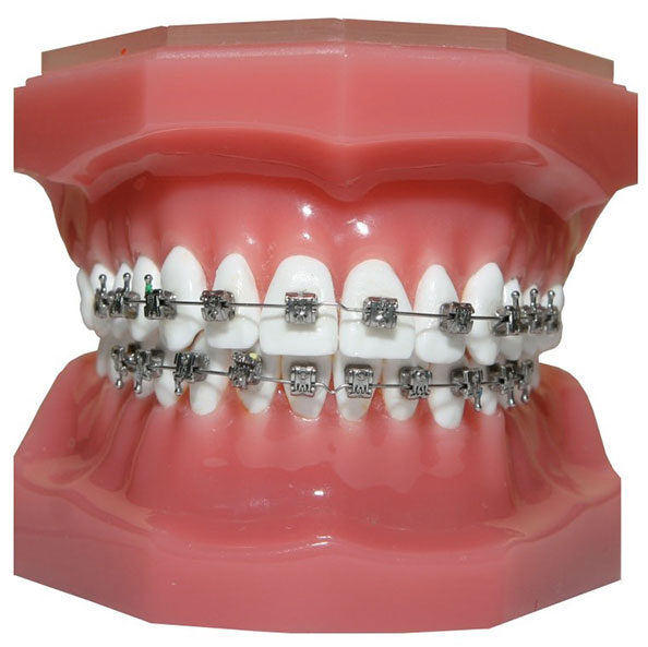 tooth-implant-malaysia-3