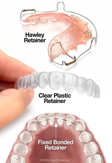 Retainer - Dental Clinic Near Me | Invisalign Malaysia ...