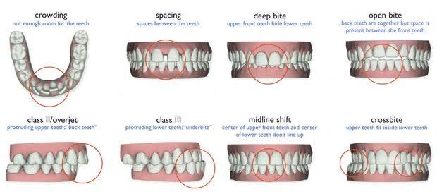 teeth-whitening-malaysia-9