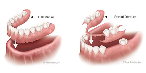 dental-implant-cost-malaysia-5