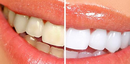 braces-price-6